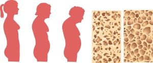 bigstock-osteoporosis-25757441